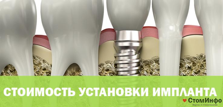 стоимость установки импланта зуба