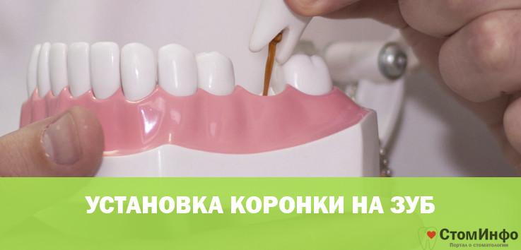 ustanovka koronki na zub