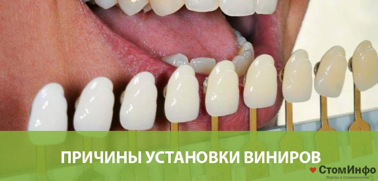 Причины установки виниров на жевательные зубы