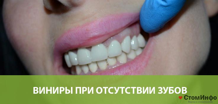 Установка виниров при отсутствии зубов