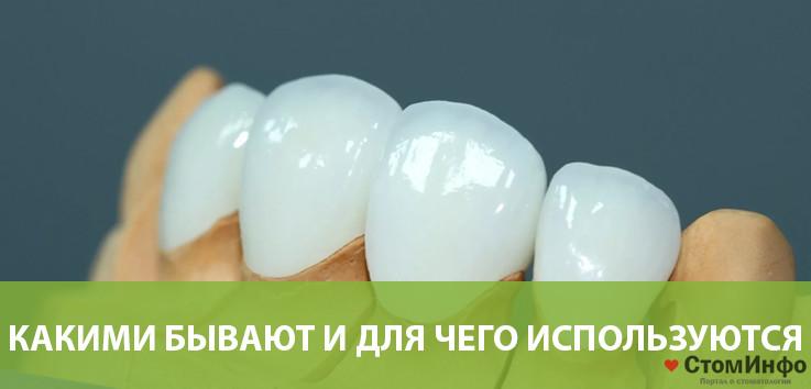 Какими бывают и для чего используются насадки на зубы (виниры)?