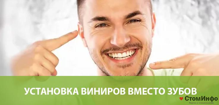 Установка виниров вместо зубов: преимущества и недостатки