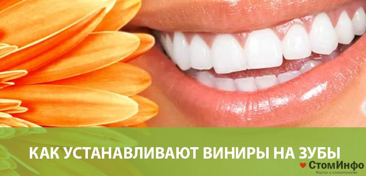Как устанавливают виниры на зубы