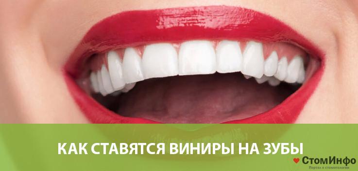 Как ставятся виниры на зубы