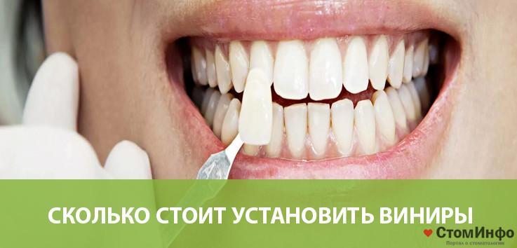 Сколько стоит установить виниры на зубы и есть ли противопоказания для протезирования?