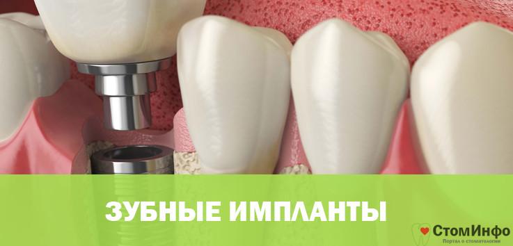 Зависимость цены от вида зубного импланта