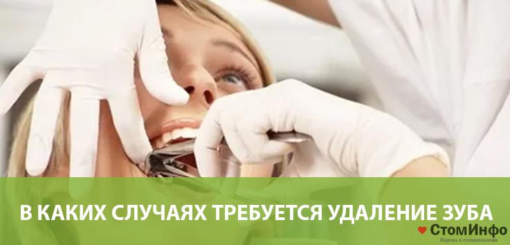 В каких случаях требуется удаление зуба