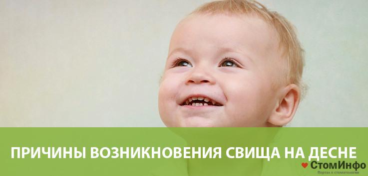 Причины возникновения свища на десне у ребенка