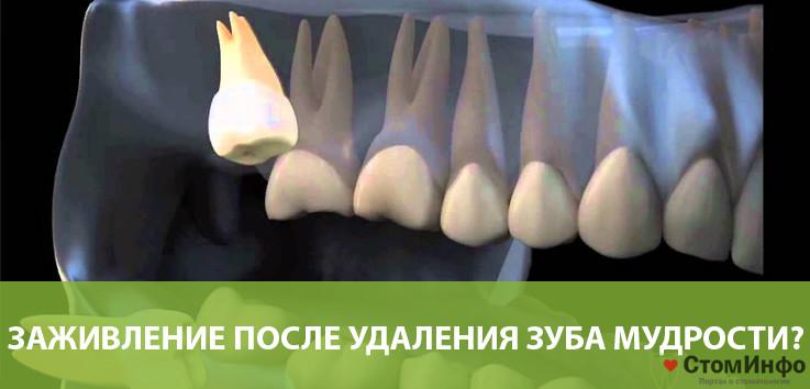 Как происходит заживление после удаления зуба мудрости?