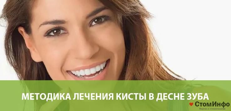 Методика лечения кисты в десне зуба