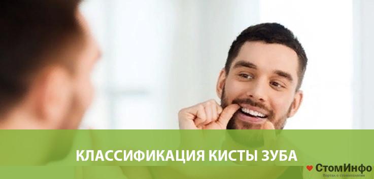 Классификация кисты зуба