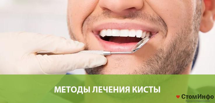 Методы лечения кисты