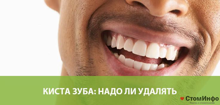 Киста зуба: надо ли удалять