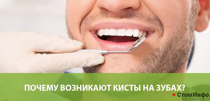 Почему возникают кисты на зубах?