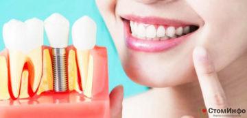 Зубной имплант под ключ