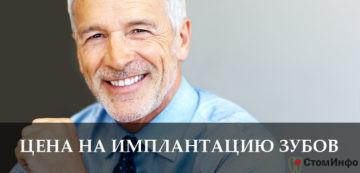 Цена на имплантацию зубов в Москве