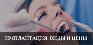 Как проводится имплантация зубов: виды и цены