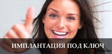 Имплантация зубов под ключ: сколько стоит в Москве?