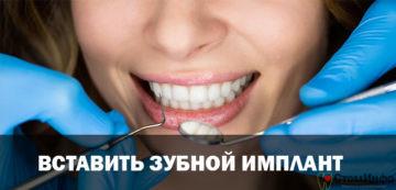 Вставить зубной имплант: цена и особенности процедуры