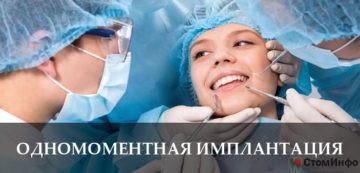 Одномоментная имплантация зубов: цены