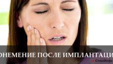 Онемение зубов после имплантации