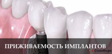 Приживаемость зубных имплантов