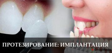Протезирование зубов имплантация цены