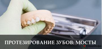 Протезирование зубов: мосты
