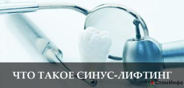 Что такое синус-лифтинг при имплантации зубов