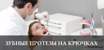 Основные сведения о зубных протезах на крючках