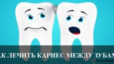 Как лечить кариес между зубами