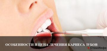 Особенности и цена лечения кариеса зубов