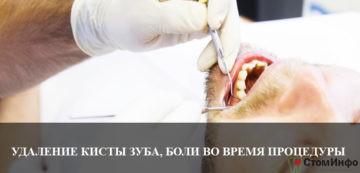 Удаление кисты зуба, боли при проведении процедуры