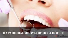 Наращивание зубов до и после