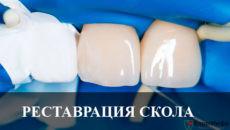 Реставрация скола переднего зуба