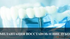 Имплантация восстановление зубов