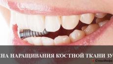Цена наращивания костной ткани зуба