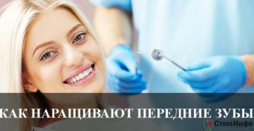 Как наращивают передние зубы