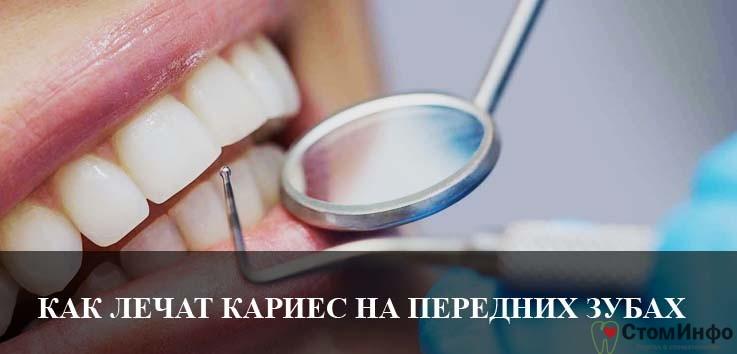 Кариес на передних зубах как лечат