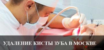 Удаление кисты зуба в Москве