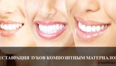 Реставрация зубов композитным материалом