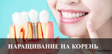 Наращивание зуба на корень стоимость