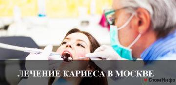 Лечение кариеса в Москве