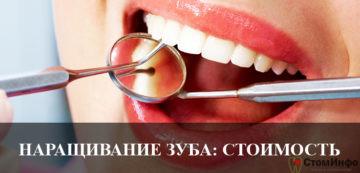 Наращивание зуба стоимость