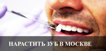 Нарастить зуб в Москве