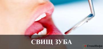Свищ зуба