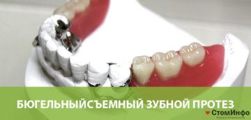 Бюгельныйсъемный зубной протез
