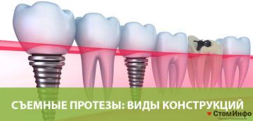 Съемные протезы зубов: виды конструкций