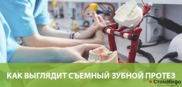 Как выглядит съемный зубной протез