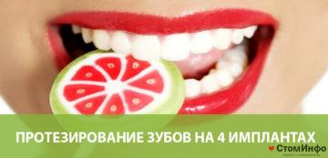 Протезирование зубов на 4 имплантах: стоимость